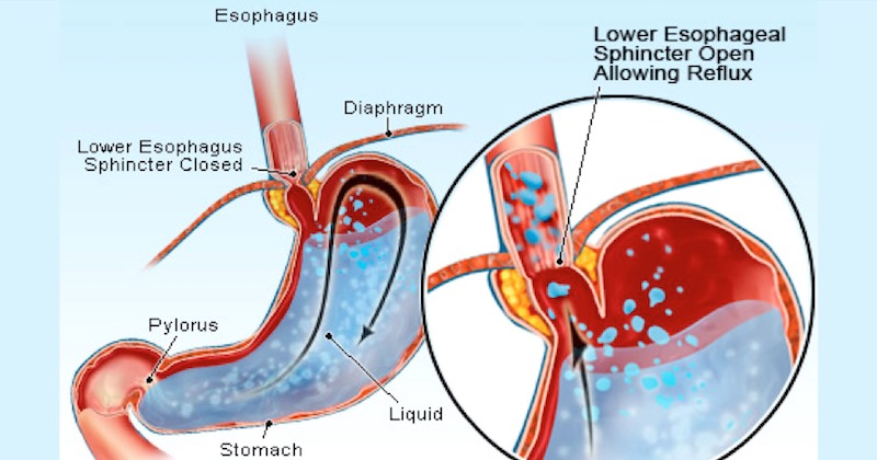 Stomach acidity
